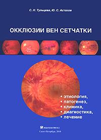 Окклюзии вен сетчатки (этиология, патогенез, клиника, диагностика, лечение)