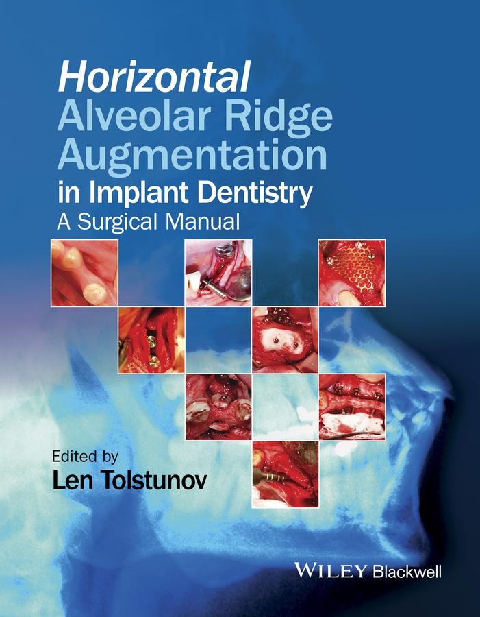 Horizontal Alveolar Ridge Augmentation in Implant Dentistry. A Surgical Manual
