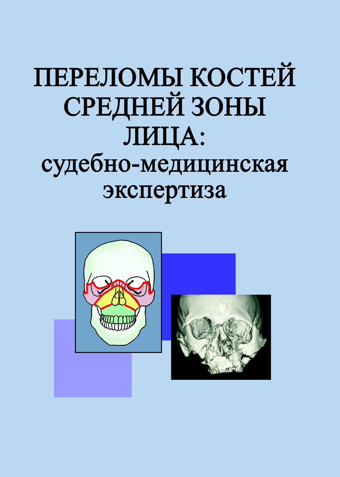 Л. Н. Гришенкова Переломы костей средней зоны лица: судебно-медицинская экспертиза
