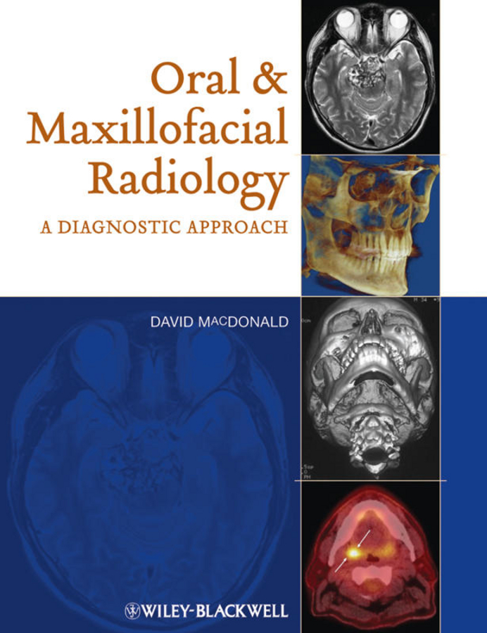 David Macdonald Oral and Maxillofacial Radiology. A Diagnostic Approach