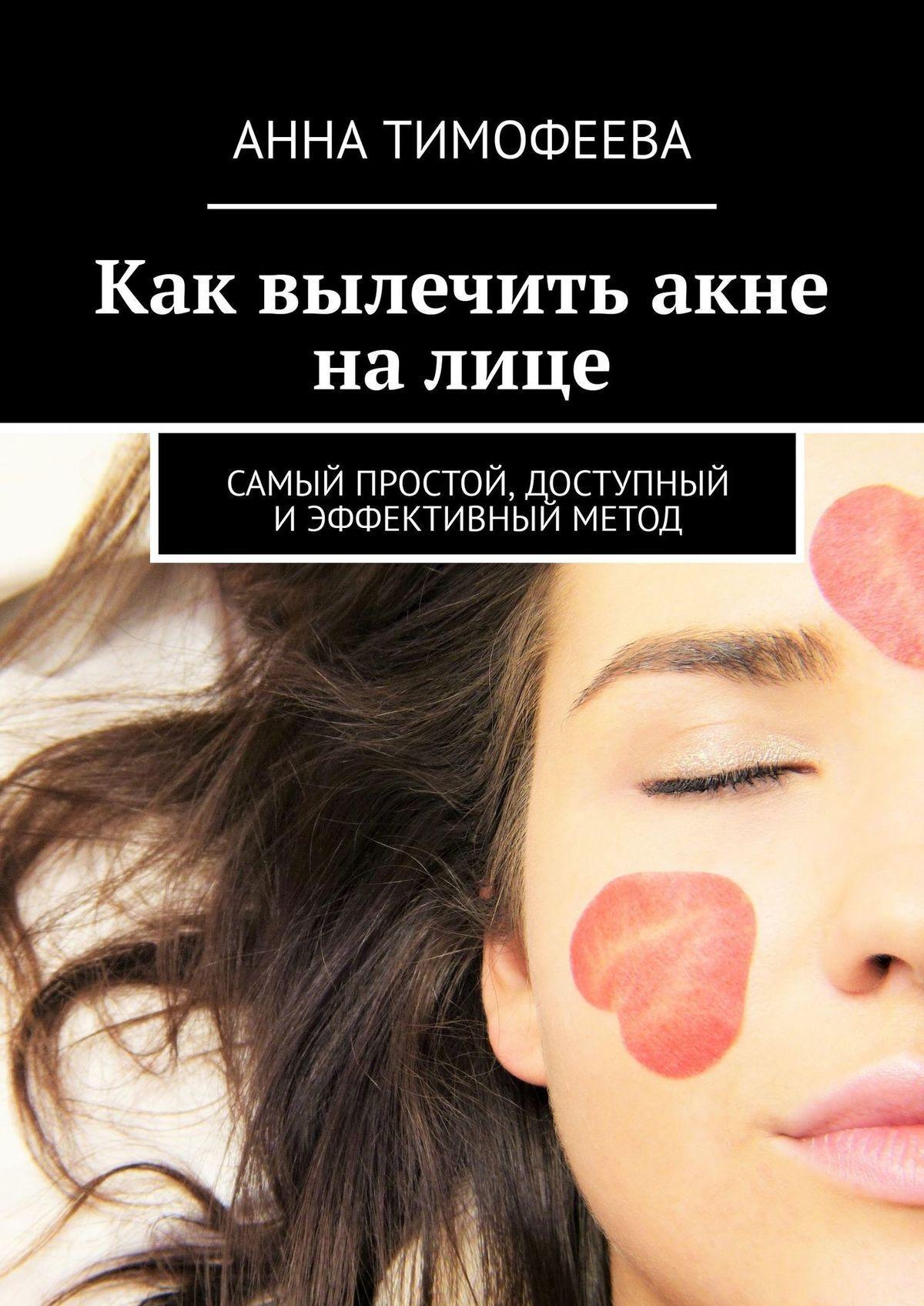 Татьяна Михеева Как вылечить акне на лице. Самый простой, доступный иэффективный метод мази при куперозе на лице