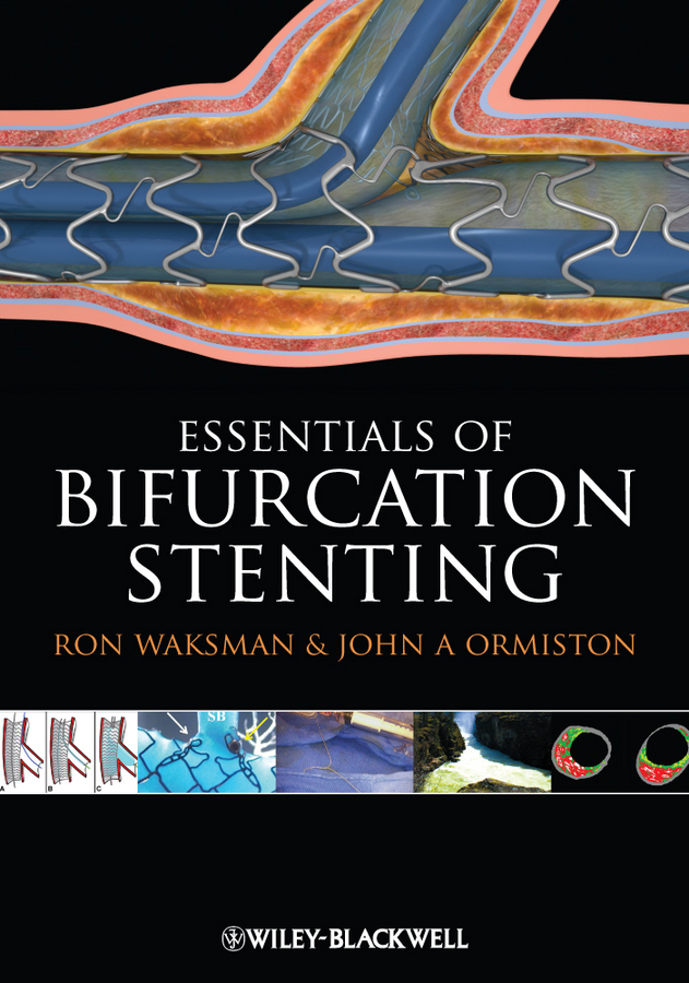 Фото - Waksman Dr. Ron Bifurcation Stenting ever grech d abc of interventional cardiology