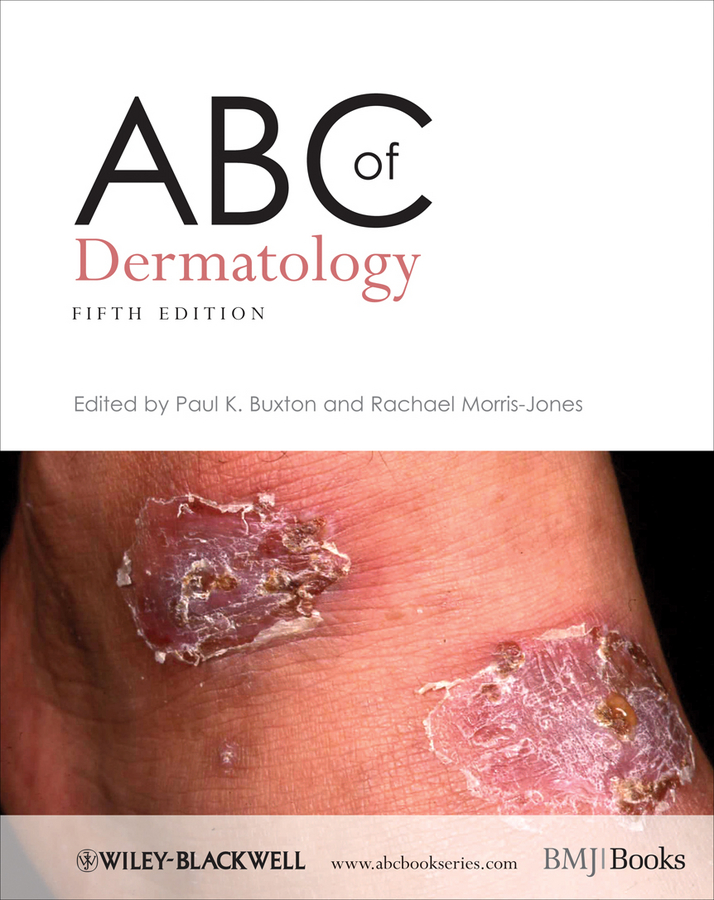 Morris-Jones Rachael ABC of Dermatology fletcher alan abc of emergency differential diagnosis