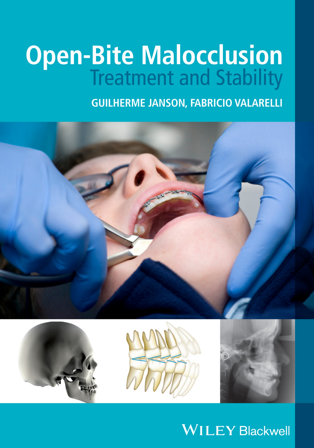 лучшая цена Valarelli Fabricio Open-Bite Malocclusion. Treatment and Stability