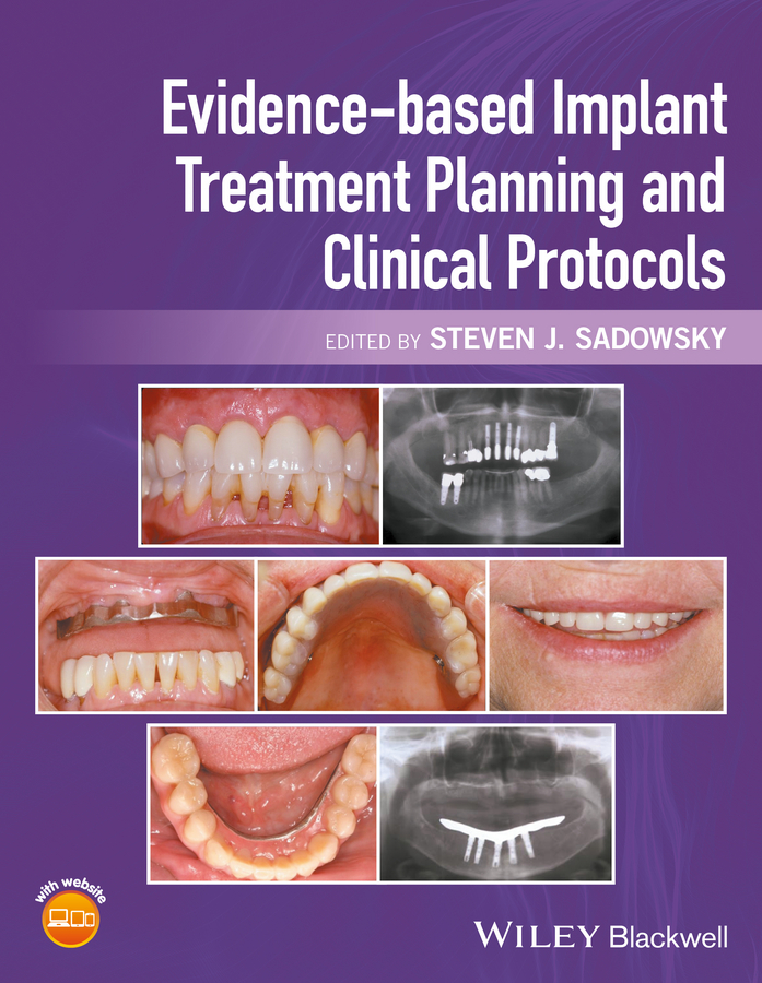 лучшая цена Steven Sadowsky J. Evidence-based Implant Treatment Planning and Clinical Protocols