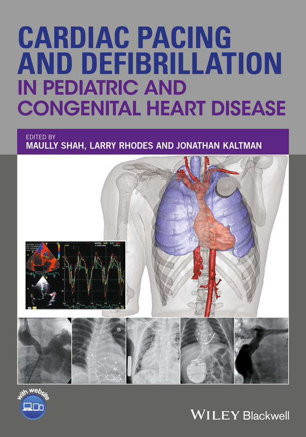 Maully Shah Cardiac Pacing and Defibrillation in Pediatric and Congenital Heart Disease the heart disease breakthrough