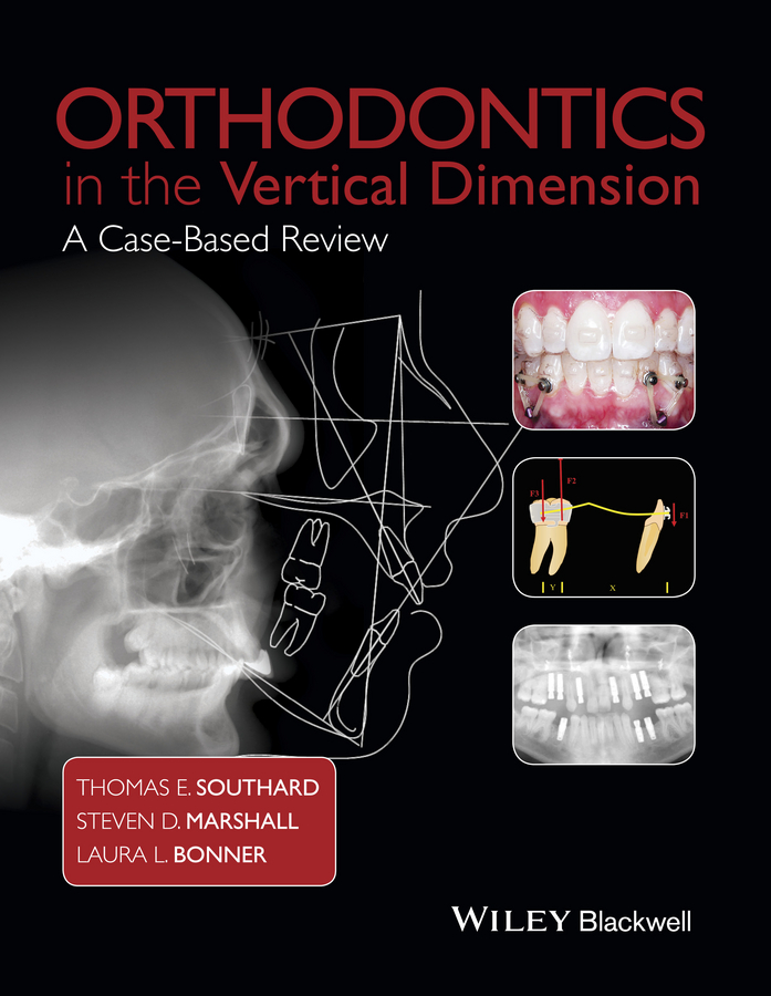Thomas Southard E. Orthodontics in the Vertical Dimension. A Case-Based Review birte melsen adult orthodontics