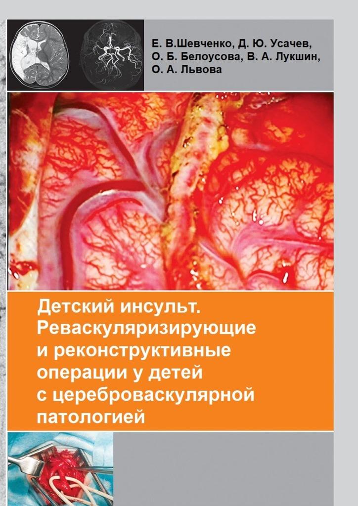Коллектив авторов Детский инсульт. Реваскуляризирующие иреконструктивные операцииудетей сцереброваскулярной патологией а м абезгауз геморрагические заболевания у детей