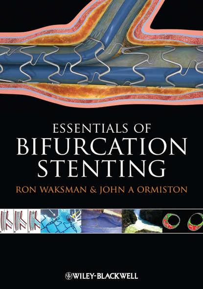 Waksman Dr. Ron Bifurcation Stenting недорого