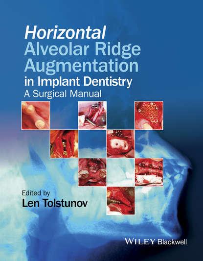 Len Tolstunov Horizontal Alveolar Ridge Augmentation in Implant Dentistry leepike ridge