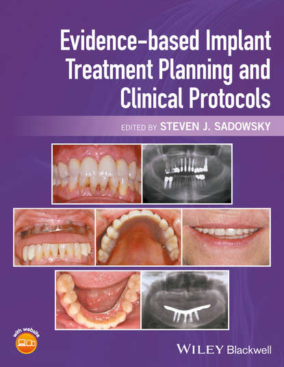 Steven Sadowsky J. Evidence-based Implant Treatment Planning and Clinical Protocols a simulation approach to project planning