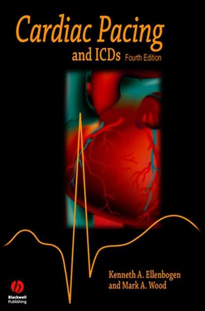 Фото - Kenneth Ellenbogen A. Cardiac Pacing and ICDs tom kenny the nuts and bolts of cardiac pacing