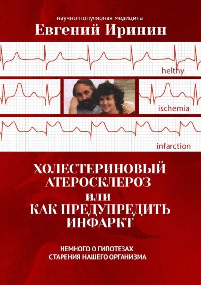 Евгений Иринин Холестериновый атеросклероз, илиКакпредупредить инфаркт. Немного огипотезах старения нашего организма
