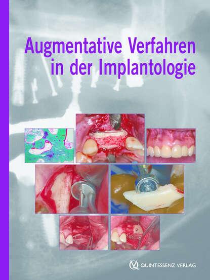 Fouad Khoury Augmentative Verfahren in der Implantologie nabil a fouad bauphysik kalender 2012 schwerpunkt gebäudediagnostik
