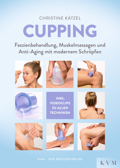 Cupping фото