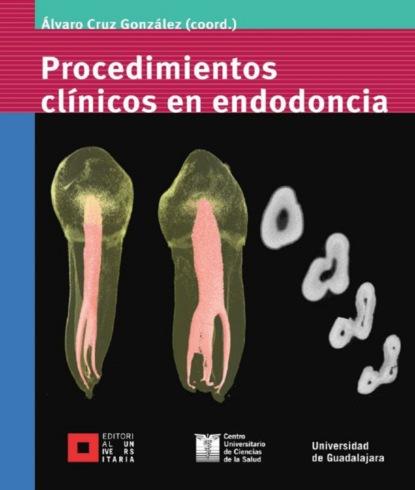 Фото - Álvaro Cruz González Procedimientos clínicos en endodoncia álvaro castillo granada con los libreros en cuba