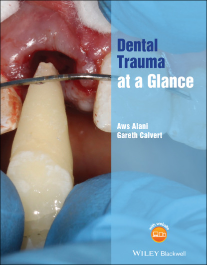 Aws Alani Dental Trauma at a Glance недорого